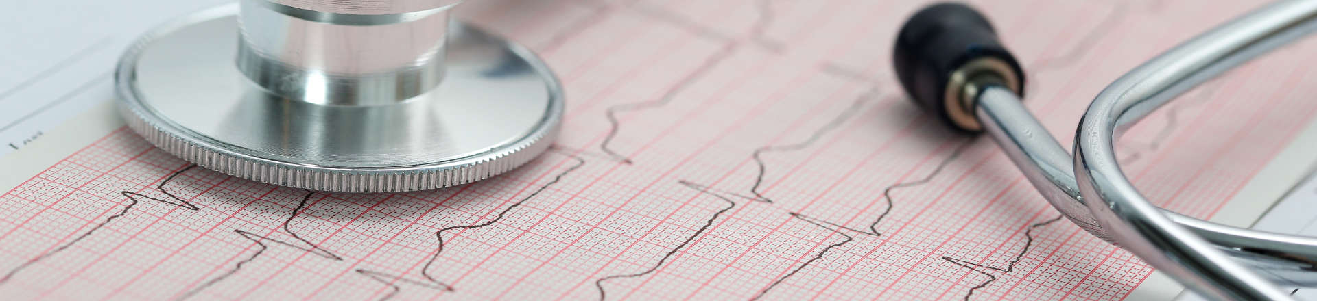 A Stethoscope and An Electrocardiogram Paper